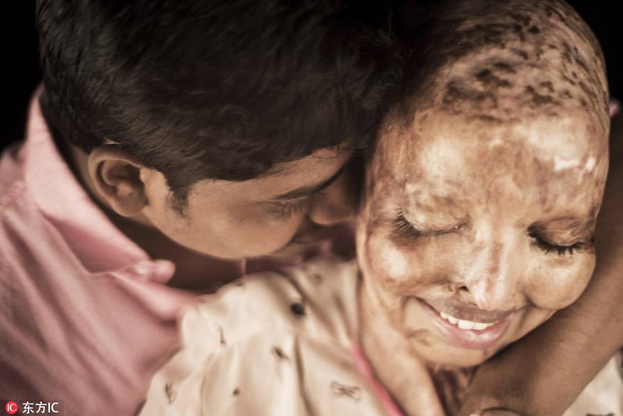 印度女孩遭泼硫酸毁容 病床上找到真爱