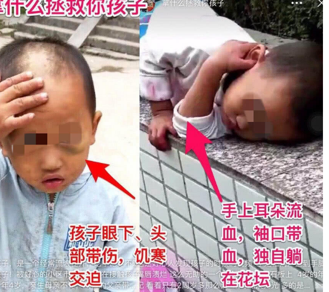 深圳又现虐童事件?孩子父亲:偶尔打孩子但没有虐待